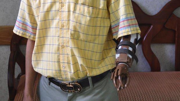 Portland Rotary prosthetics