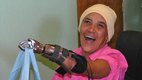 Portland Rotary prosthetics 6.png