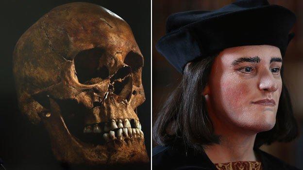 Skull and Reconstruction of Richard III