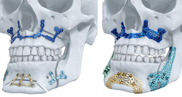 materialise-DePuy Synthes.jpg