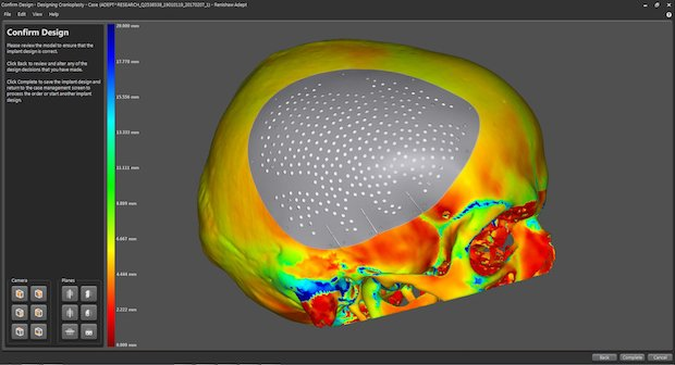 A cranial plate model in Renishaw's ADEPT software