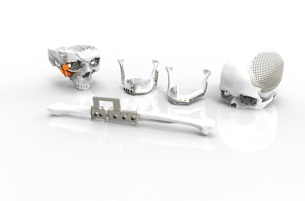 Renishaw Implant montage