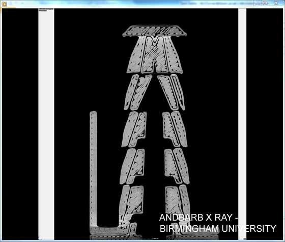 ANDBARB X RAY.jpg