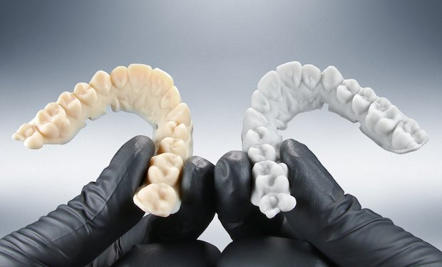 EnvisionTEC dental arches