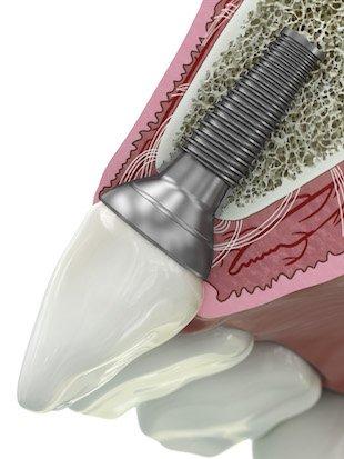 GE Add dental abutment