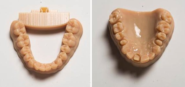 Stratasys Dental