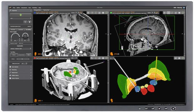 Image 2 Renishaw_neuroinspire_surgical_planning_software.jpg