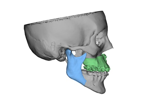3D Systems software showing the final positions in a virtual surgery