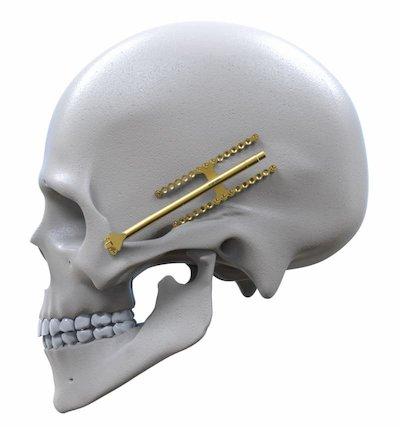 Engimplan-implant