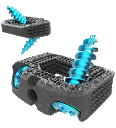Nexxt Spine receives FDA clearance for 3D printed cervical