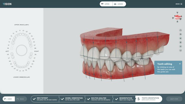 Tooth orientation on the SoftSmile software platform.