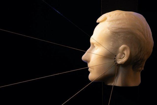 Facial nerve harp.