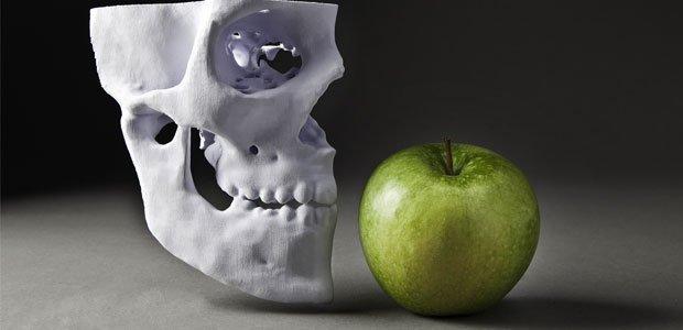 MCor Apple and Skull