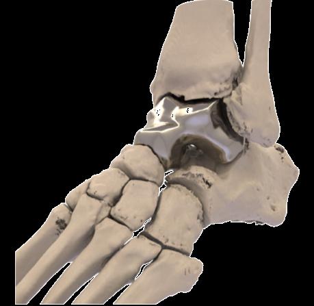 Additive Orthopaedics.png