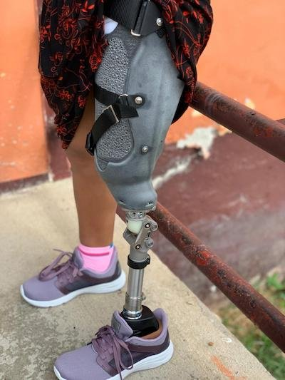 LifeNabled-nTopology-CS-hero_prosthetic.JPG