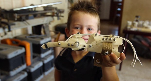 Liam with his RoboHand