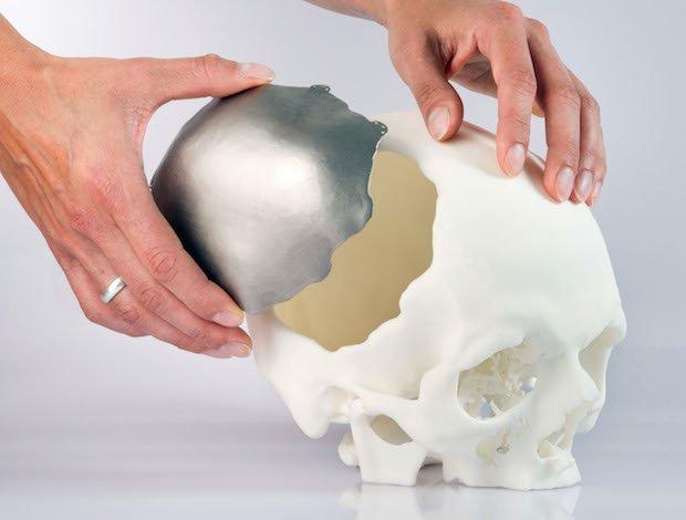 EOS implants.jpg
