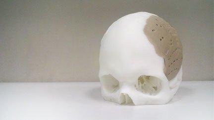 cranial_device.jpg