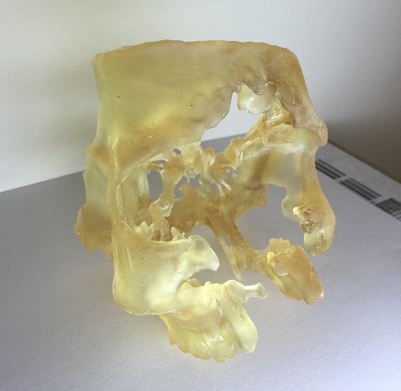 Skull-3d-print.png