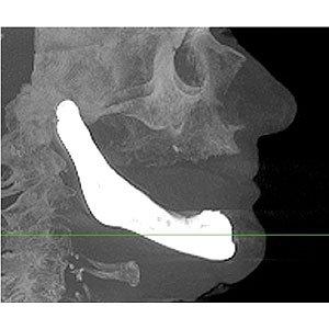 Jaw Implant
