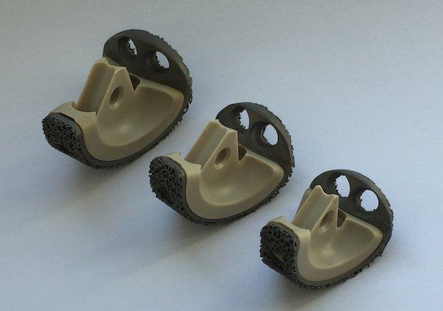 proto-labs-3d-printed-implant.JPG