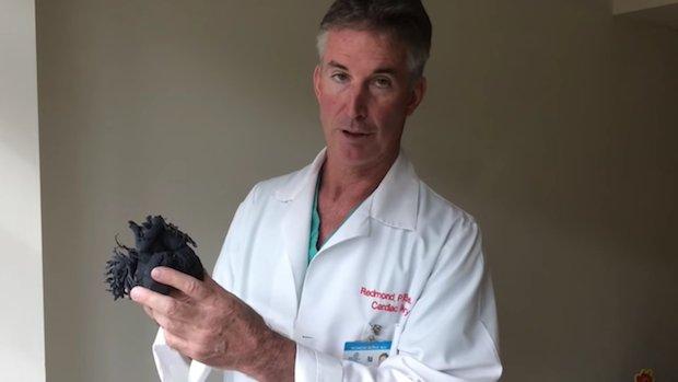 Dr Redmond P Burke with 3D heart