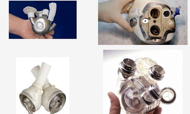 Traditional Mechanical Heart Pumps