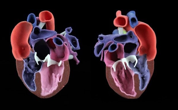 3D heart model with congenial abnormalities