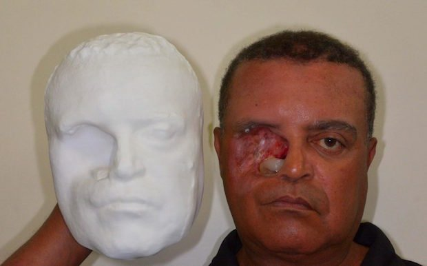 Plus ID Brazil 3D printed face prosthesis