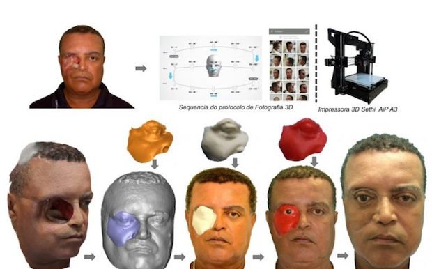 Brazilian man face prosthesis Plus ID