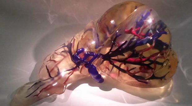 3D printed organ model