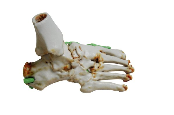 3D foot