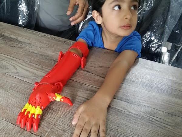 Bioniks 3D arm