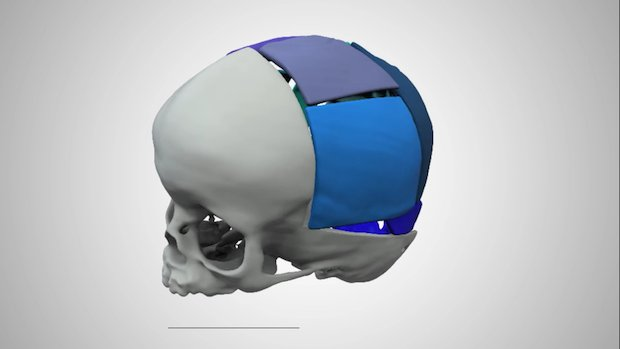 3D Systems cranial surgery 2