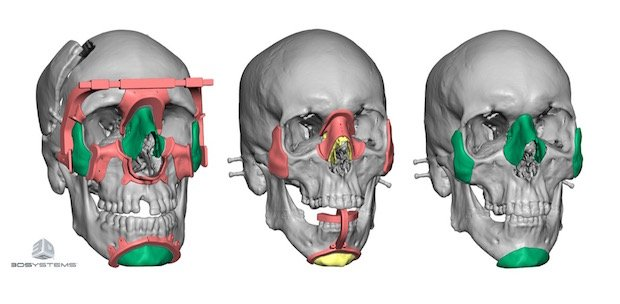 3D Systems cranial surgery