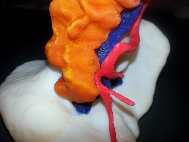Uni of Pavia surgical model - Stratasys