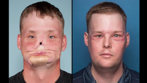 Facial reconstruction before and after pics 363