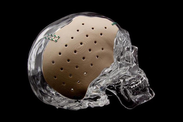 OPM OsteoFab cranial device