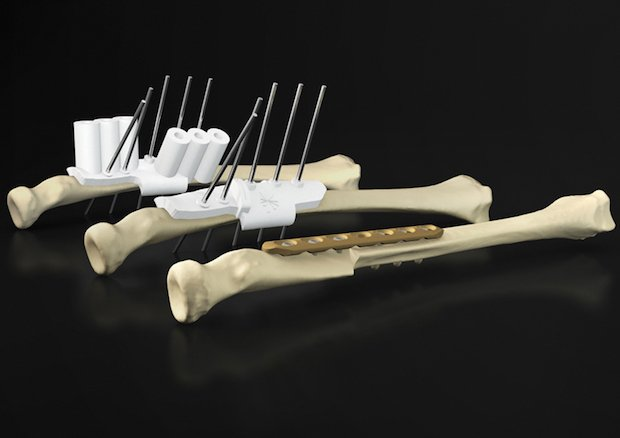 Materialise Osteotomy Guides