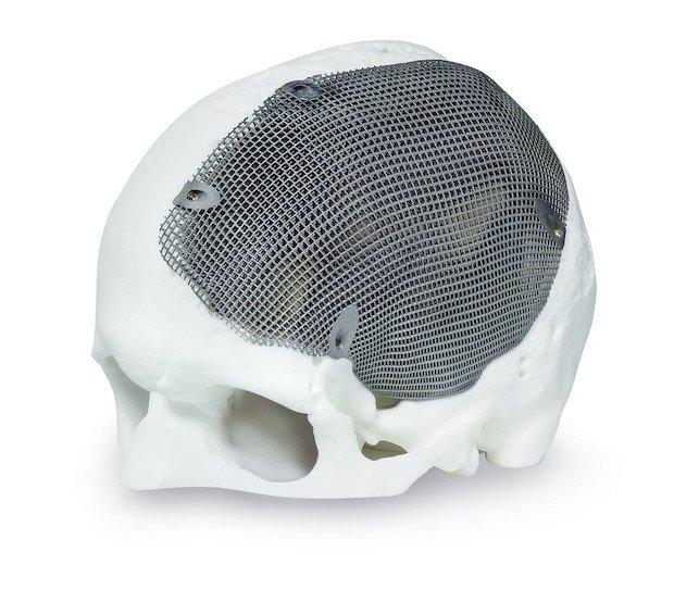 Concept Laser medical implant